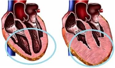Doença do coração em gatos 1
