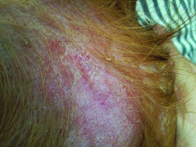 Hipotireoidismo em Golden Retriever: sintomas e tratamento 17